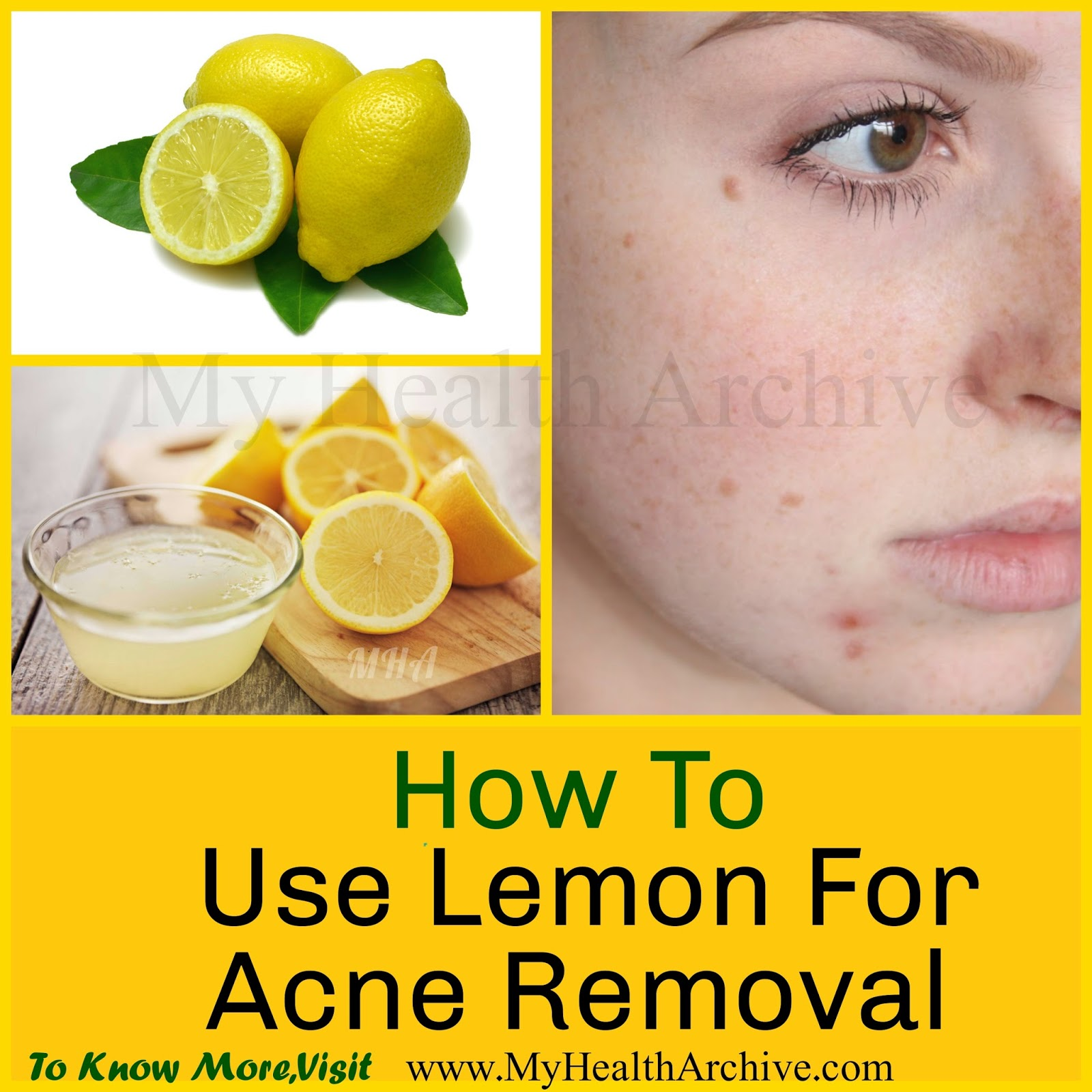 Natural Pimple Treatment Lemon