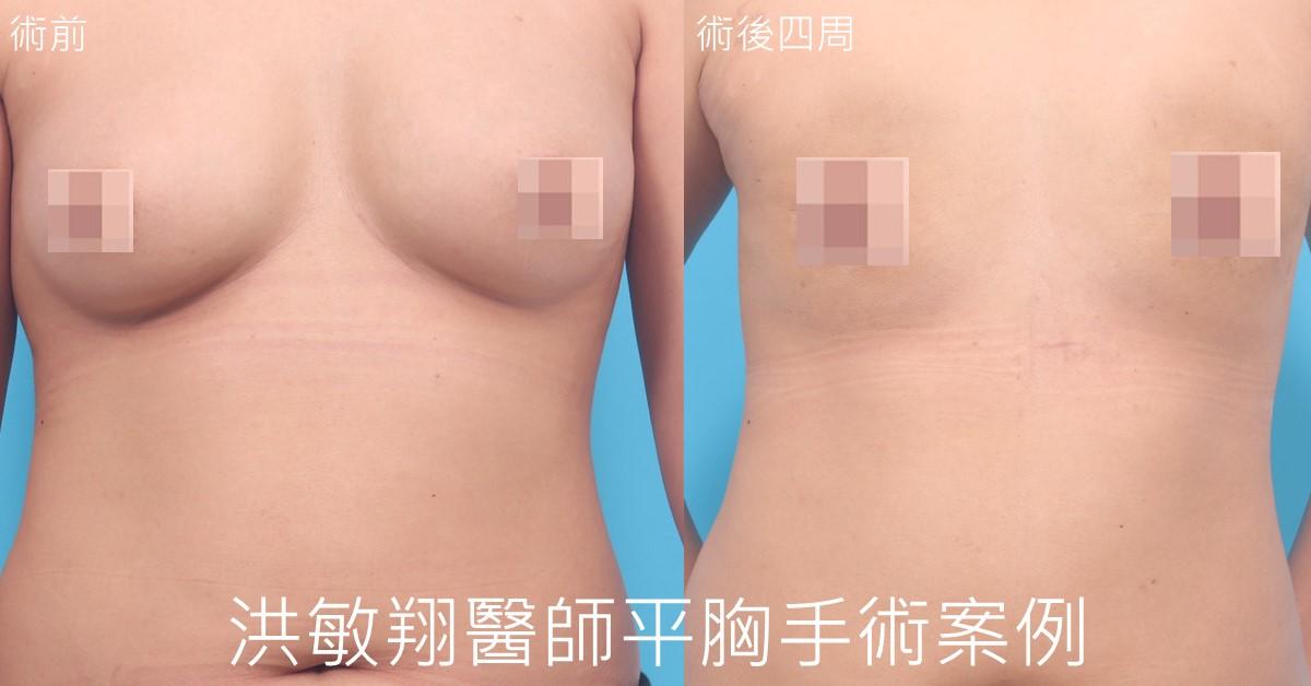 甜甜圈平胸手術案例正面