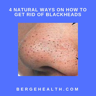 Extreme Blackhead Cluster Removal