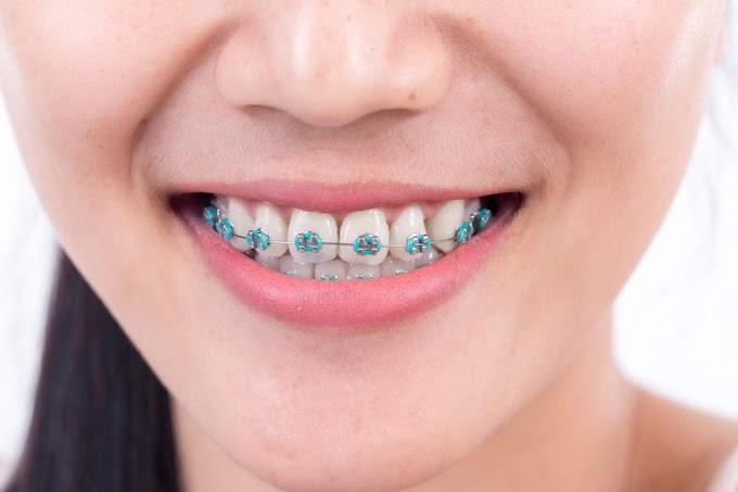 Braces : Soal Jawab Mengenai Braces
