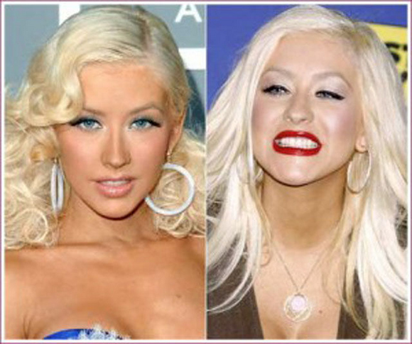 Before And After Merging Two Rooms Has Created A Super: Scary Celebrity Plastic Surgery Before And After Gone Bad
