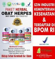 Obat Herbal Untuk Penyakit Herpes GENITAL ZOSTER, KUTIL KELAMIN, SIPILIS LUKA ASLI DE NATURE