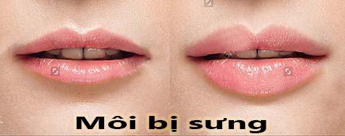 Bị sưng môi sau phun