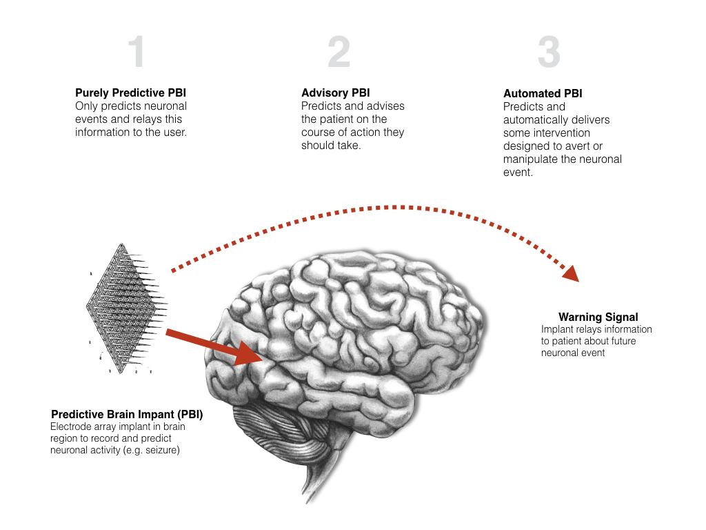 type of brain electrode