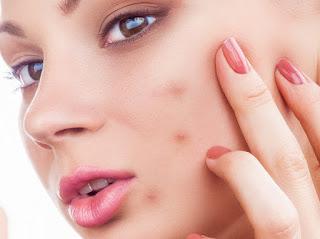 acne, acne cure, good acne cure,acne treatment