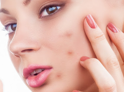 acne, acne cure, good acne cure,acne treatment
