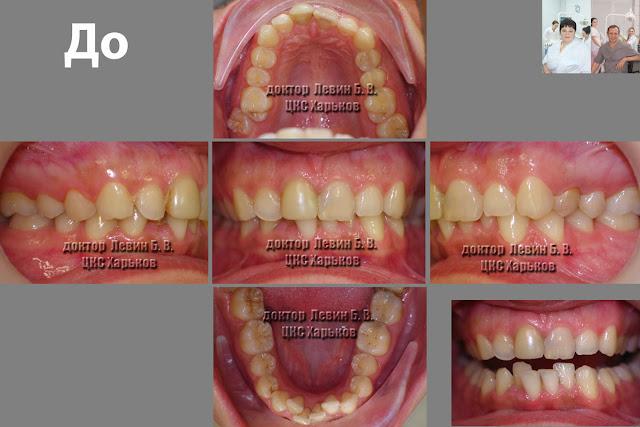 На иллюстрации 5 фото, всех проекций прикуса пациента до лечения