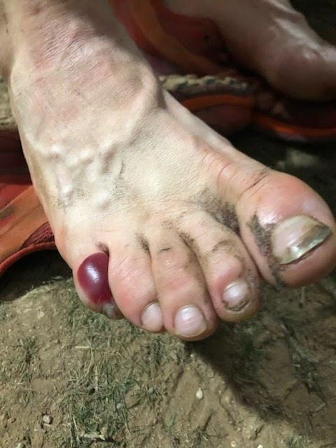 Ugly Toe Pics : Trailrat's, Adventures......: