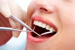 scaling gigi untuk mengetahui gigi berkarat