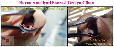 Nasal septal perforation - Repair of nasal septal perforation - Nasal septum perforation - Septal perforation - Surgical treatment of nasal septal perforation - Septal perforation repair surgery in Istanbul - Perforated septum treatment in Turkey