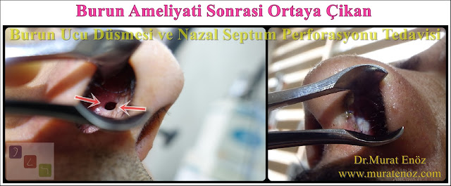 Nazal septum perforasyonu - Septum perforasyonu ameliyatı olanlar - Septum perforasyonu olanlar - Septum perforasyonu ameliyatı yapan doktorlar - Burunda delik oluşumu - Burun duvarında delik - Burun kıkırdak delinmesi tedavisi - Septum perforasyonu ameliyatı olanlar - Septum perforasyonu olanlar - Septal perforasyon tamiri - Septal buton uygulaması - Nazal septum perforasyonu tedavisi - Nazal septum perforasyonu nedenleri - Nazal septum perforasyonu belirtileri - Septum perforasyonun cerrahi onarımı - Burun delinmesinin nedenleri - Nazal septum perforasyonu tanısı - Erkek burun estetiği - Burun estetiği ameliyatı - Definition of Nasal Septal Perforation - Causes of Perforated Nasal Septum - Symptoms of Nasal Septal Perforation - Diagnosis of Nasal Septal Perforation - Surgical Treatment For Nasal Septal Perforation - Nasal Septal Perforation Repair - Surgical Repair of Nasal Septal Perforation - Burun Ucu Düşmesi