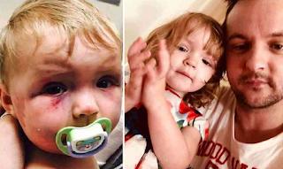 Έτσι είναι σήμερα το μωράκι που είχε δεχθεί επίθεση από την ίδια του τη μάνα