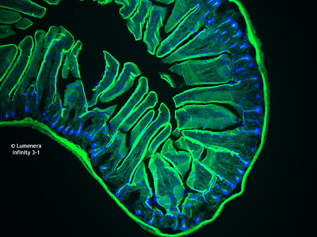 Infinity 3-1 microscopy camera image of mouse intestine under the microscope using fluorescence.