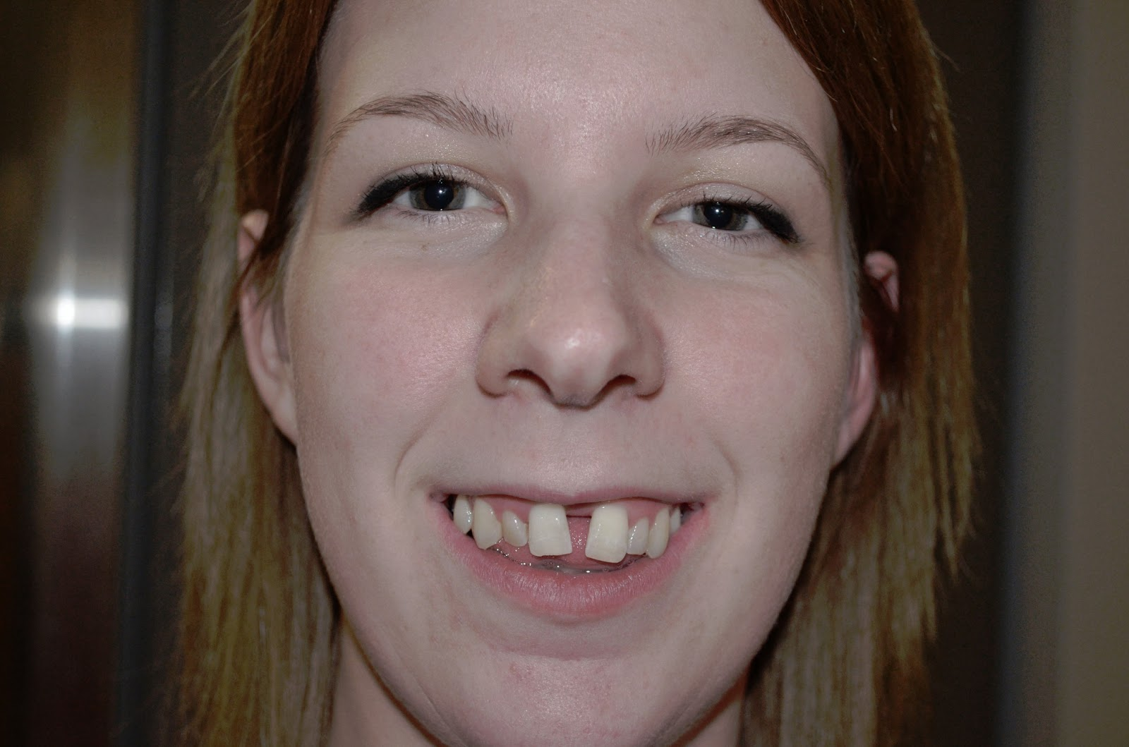 Amy S Sarpe Adventure Update Before Braces Go On 34 Turns