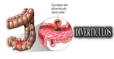 Diverticulos Intestinales, Sintomas de Diverticulos, Vivir saludablemente, En que edad se tienen diverticulos intestinales, Diverticulo Intestinal,