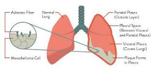 mesothelioma health resources