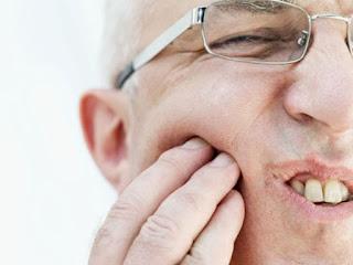 Obat Alami Sakit Gigi Berlubang Paling Ampuh
