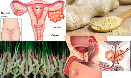 THIS Common Spice Has Been PROVEN To Kill Ovarian And Prostate Cancer WITHOUT The Chemo Collateral Damage