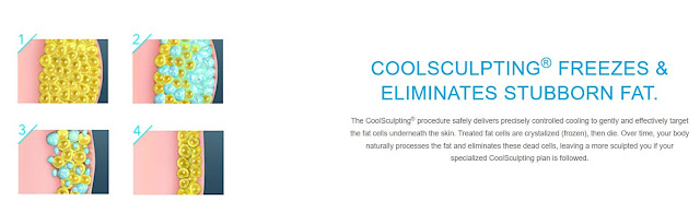 How does CoolSculpting Work By Slim Silhouettes and Barbies Beauty Bits