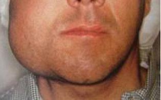Obat Bengkak di Bawah Telinga dan Rahang Bengkak Yang Ampuh