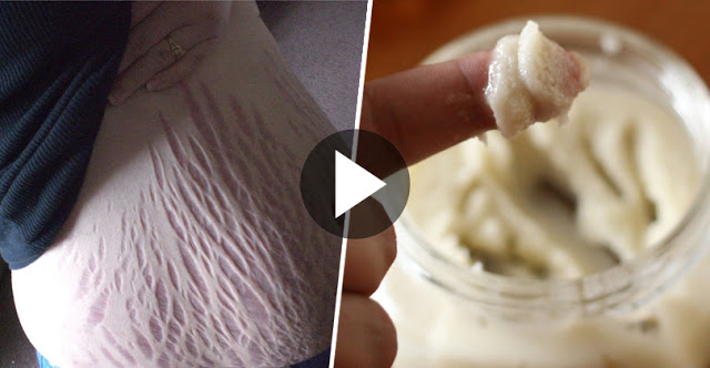 This Homemade Lotion Removes Stretch Marks Magically In just 2 Days