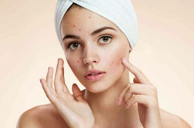 Hal Yang Harus Anda Perhatikan Saat kulit Wajah Berjerawat