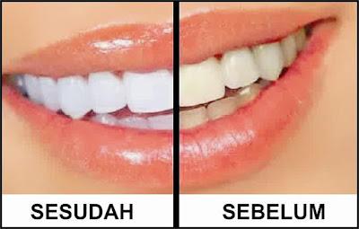 3 Ramuan Pemutih Gigi Alami Untuk Pemakai Kawat Gigi Info Lucu Dan