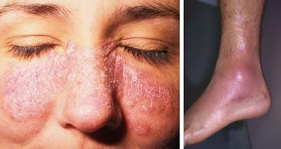 Obat Lupus Herbal Paling Ampuh dan Manjur