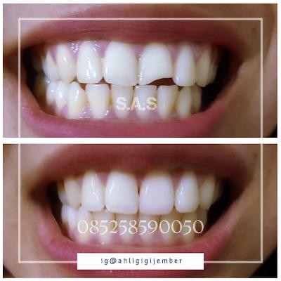 foto perbaikan gigi depan patah cuil rompal di ahli gigi pati jawa tengah