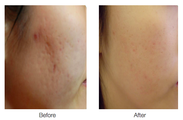 Bellezza aesthetics After treatment Fracell Skin Reborn