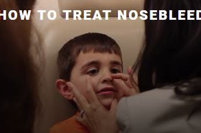How To Treat Nosebleeds