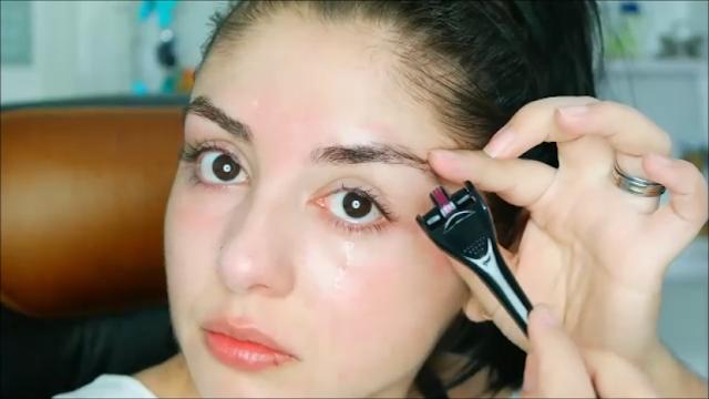 dermaroller para olhos, como usar dermaroller, ácido hialurônico, vitamina c , aplicação de dermaroller