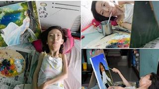 Παράλυτη γυναίκα που έμεινε 32 χρόνια στο κρεβάτι ζωγραφίζει εκπληκτικά και είναι σήμερα μια διάσημη καλλιτέχνιδα