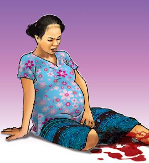 Pendarahan pada hamil muda dan hamil tua