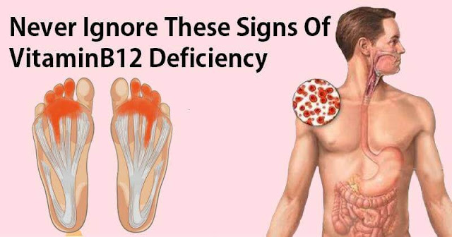 Never Ignore This Signs of Vitamin B12 Deficiency