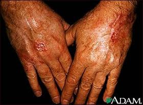 Skin Cancer Warning Signs November 2011