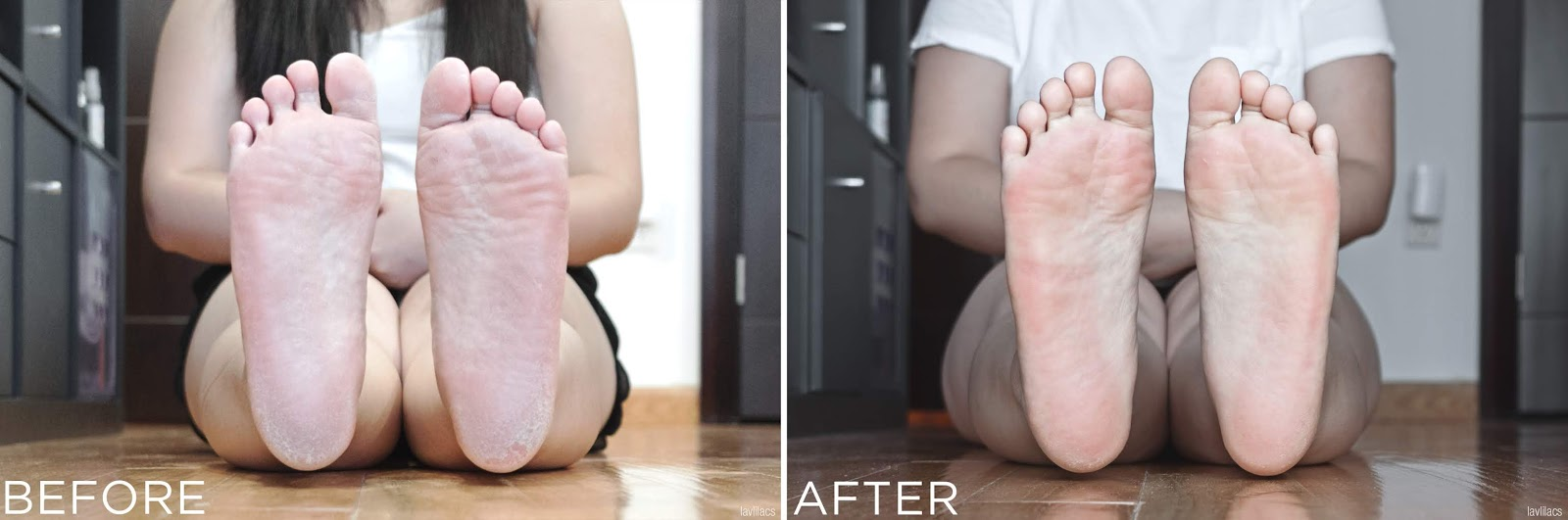 lavlilacs the SAEM Dear My Foot Power Peeling - Before and After