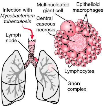 Basic Tuberculosis Information