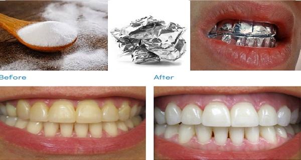 Bungkus Gigi Dengan Kertas Aluminium Foil Maka Kamu Akan Lihat