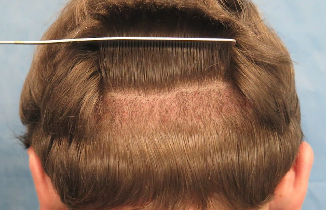 5 Ways Hair Transplants Can Do Wonders For You 3
