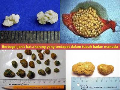 Rawat Batu Karang Dengan Shaklee