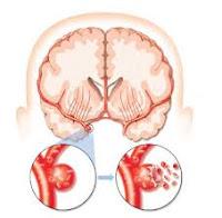 Cara Mengobati Trombosis Otak