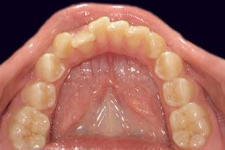 Дефицит места зубного ряда. Фотография, Харьков