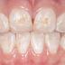 Seis doenças causadas pela má higiene bocal