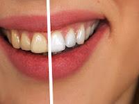 Begini Cara Mengobati Sakit Gigi dan  Mengatasi Gigi Yang Berlubang