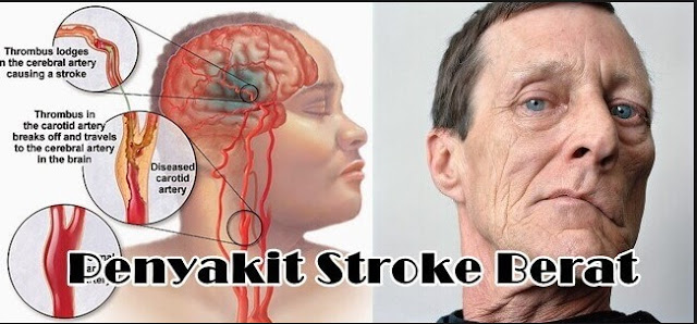 Obat untuk Mengobati Stroke Ringan Hingga Berat
