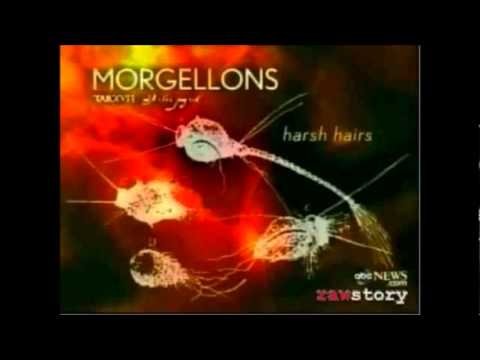 MORGELLONS is a man madenanotechnology a bioweapon