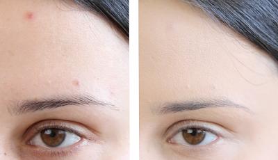 Maquillage acné : peut-on maquiller une peau acnéique ?
