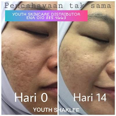 Kesan parut jerawat dan kesan berkawah semakin pudar dan hilang dengan Youth Skincare Shaklee