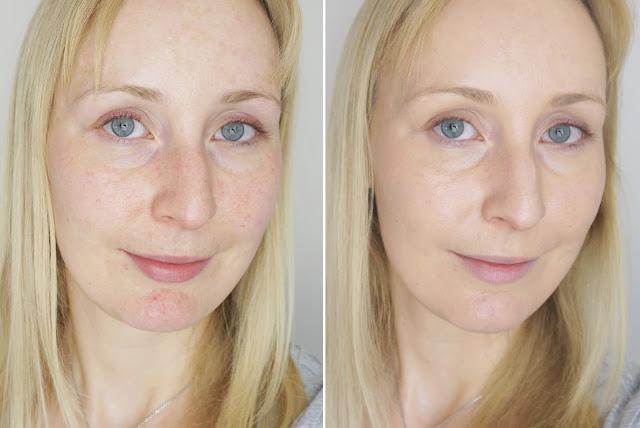 Clinique - Even Better Make-up SPF 15 (03 ivory) Vorher Nachher Blogger ungeschminkt